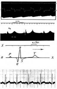 primo ECG