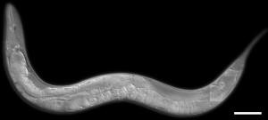 Il verme nematode Caenorhabditis elegans (Ian D. Chin-Sang, Queen`s University, Kingston, ON, Canada)