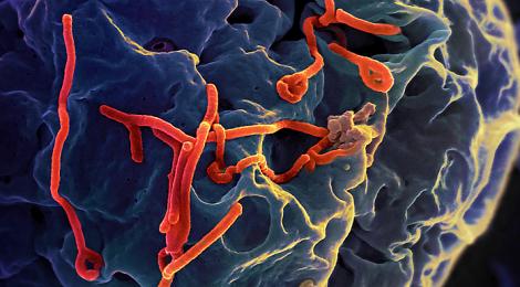 Imparare da HIV per sconfiggere ebola: lo dicono due Nobel
