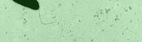 Un nuovo CRISPR in difesa dei batteri