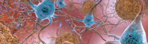 Alzheimer, proteina chiave svelata in alta definizione