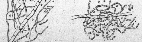 Penicillium glaucum, immagine del 1854 credits: www.commons.wikimedia.org (licenza CC)
