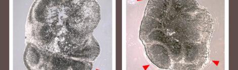 X fragile: il primo studio con gli organoidi cerebrali